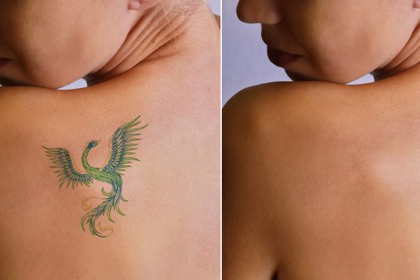 The Surprising Benefits To Gain From Removing Tattoos Using Laser Treatments